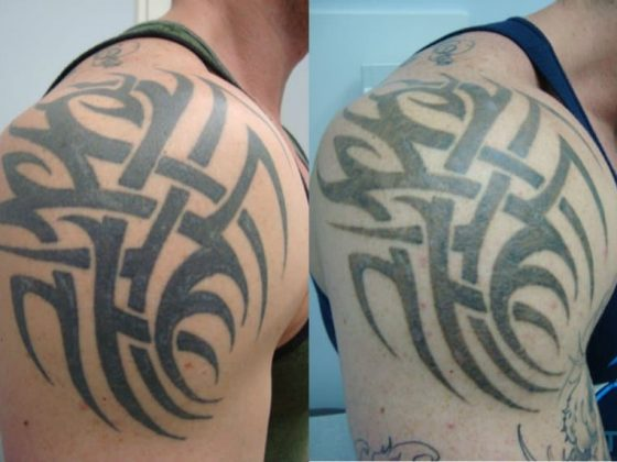How to Prevent Tattoo Fading